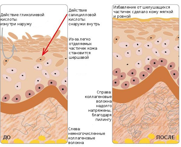 Как действует салициловая кислота