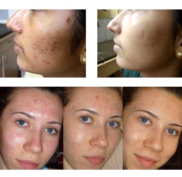 Пилинг салициловой кислотой: фото до и после процедуры
