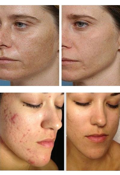 Салициловый пилинг: фото до и после