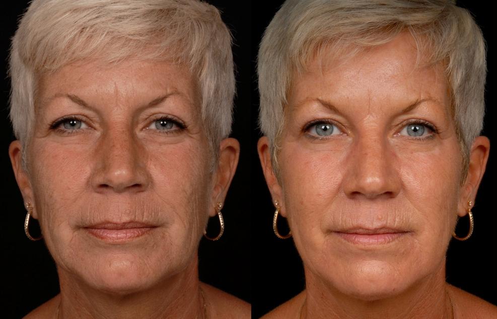контраст карбокситерапия лица фото до и после украшения говорят высоком