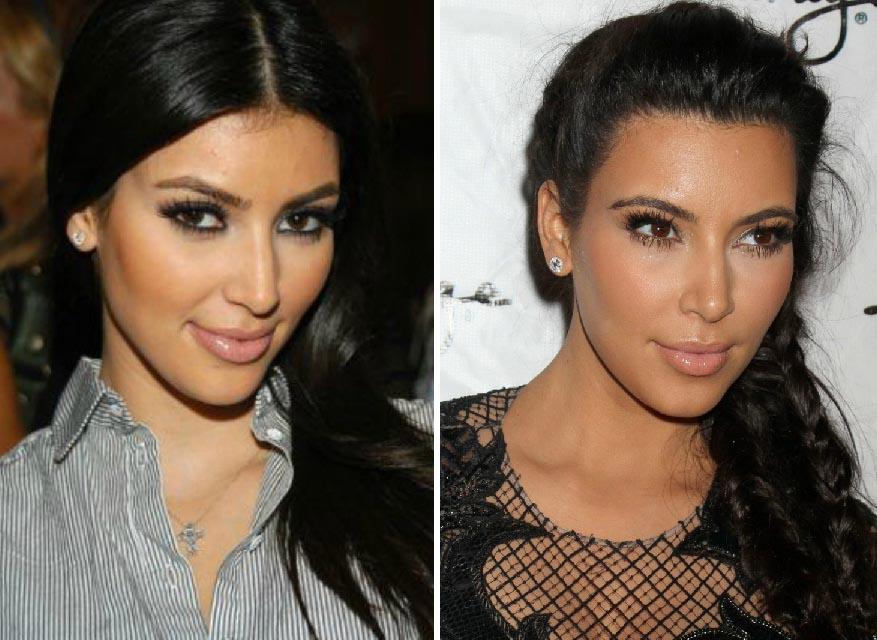 Ким Кардашьян до и после коррекции носа