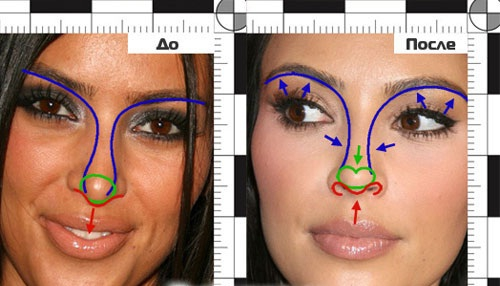 Фото Кардашьян до и после ринопластики с пометками пластического хирурга