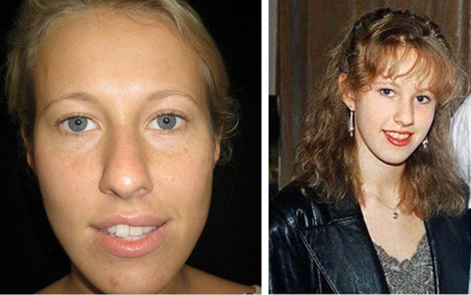 Самые шокирующие жертвы пластической хирургии