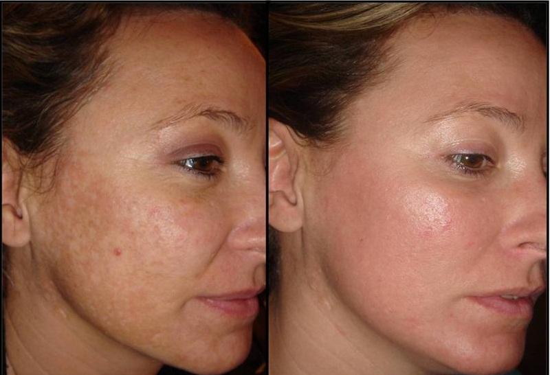Плазменное омоложение кожи отзывы