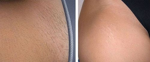 Brazilian Laser Hair Removal  Full Brazilian  Pubic Hair