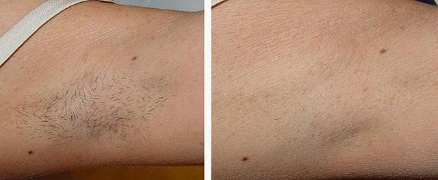 Лазерная эпиляция на какой день выпадают волосы