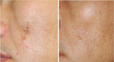 дерматикс фото до и после