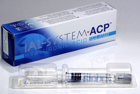 Препарат Иал Систем (Ial System): биоревитализация и объемная коррекция