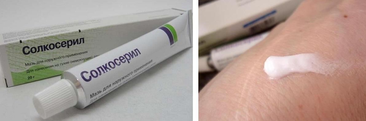 Мазь Солкосерил подходит для обработки подсыхающих (гранулирующихся) ран