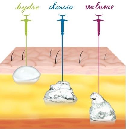 Комплексное применение препаратов  Yvoire (Ивор)