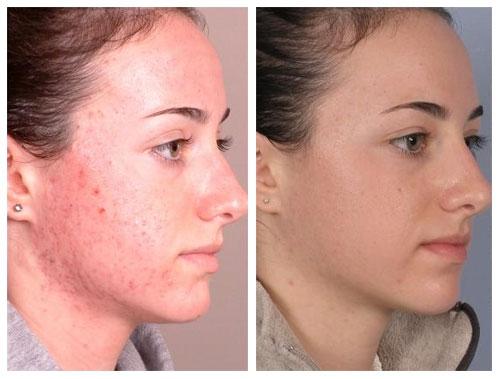 Фото пациентов до и после лечения акне