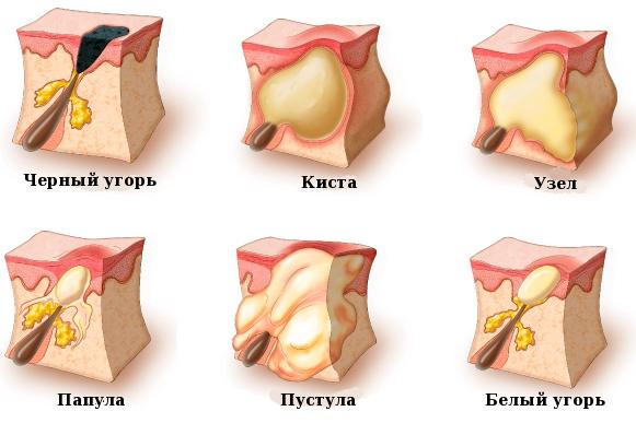 Различные кожные образования, характерные для акне