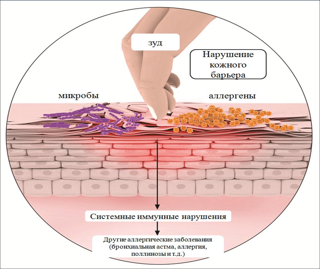 какие высыпания при аллергии