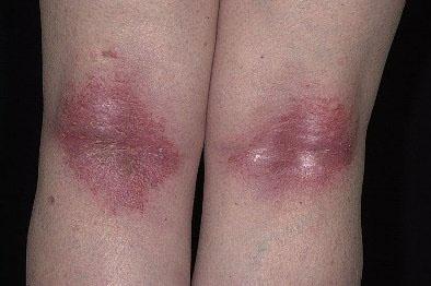 Атопический дерматит чем лечить простуду
