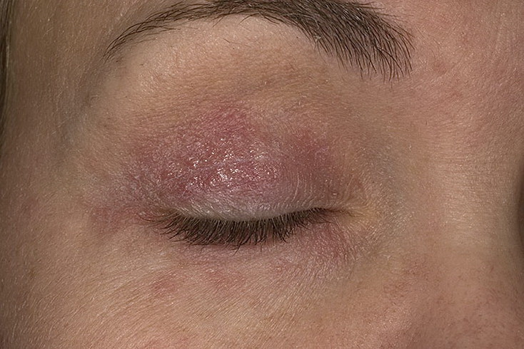 Может ли стафилококк вызывать атопический дерматит