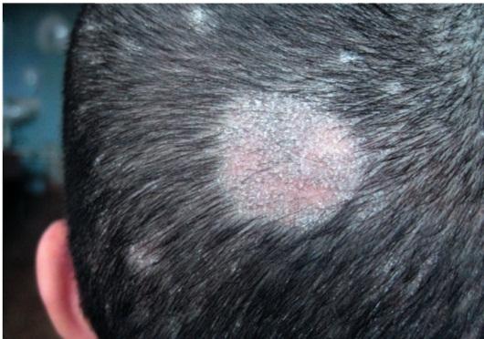 Грибок головы микроспория