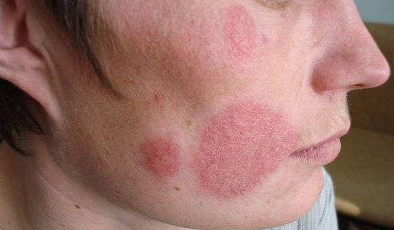 Кожа лица, пораженная грибковой инфекцией