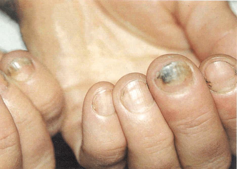 Грибок ногтей рук (кандида)