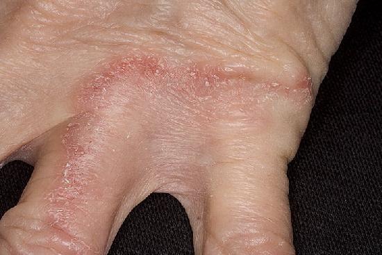 Грибок кожи рук (дерматофития)