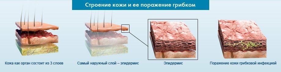 Как меняется структура кожи при поражении грибком