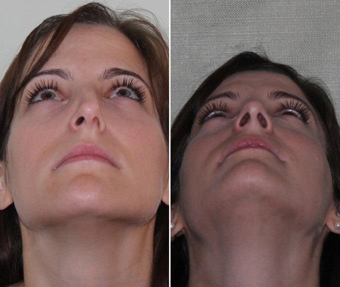 смещение перегородки носа операция