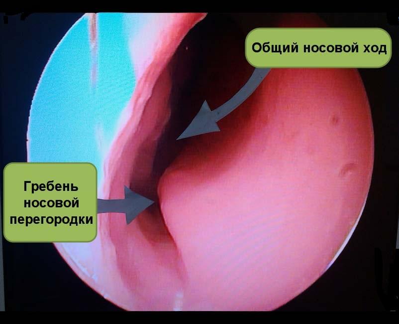 Пластика перфорации перегородки носа