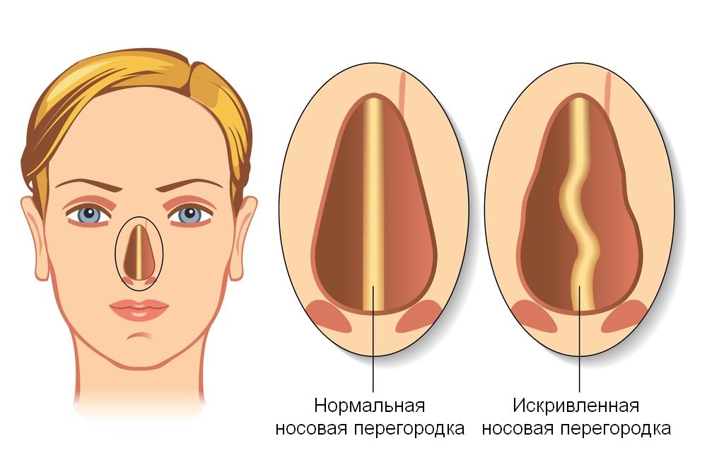 жить здорово тема исправление носовой перегородки