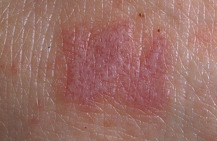 Что такое красный плоский лишай Причины симптомы и лечение