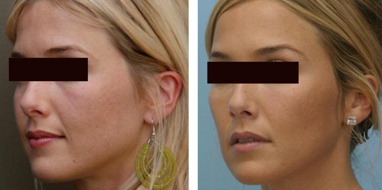 Курносые носы: фото до и после операции
