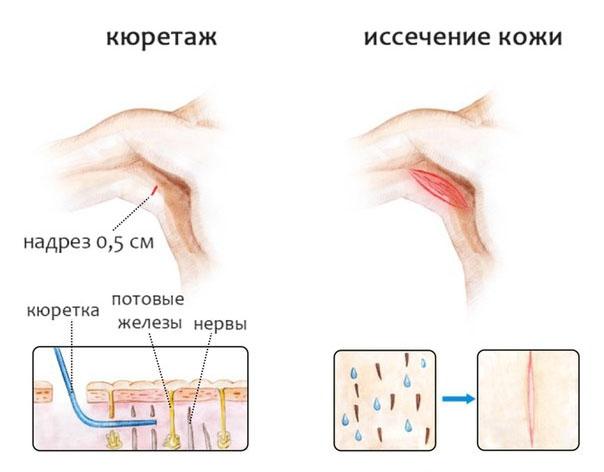 Иссечение кожи подмышечной области