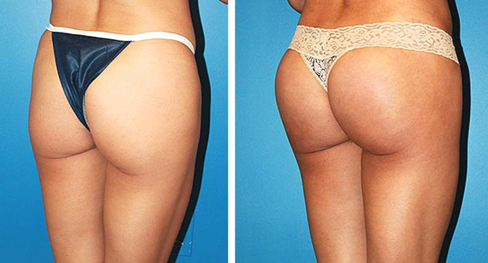 преодолеть сопротивление ягодичные импланты фото до и после просто