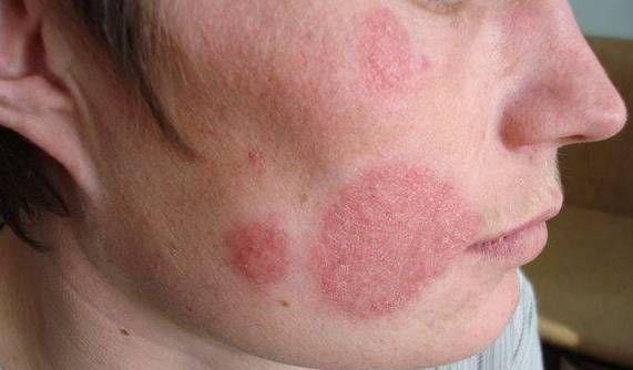 Микроспория: причины, симптомы, профилактика и лечение