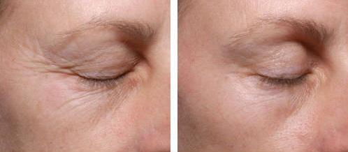 Как выглядят морщины под глазами и результат коррекции