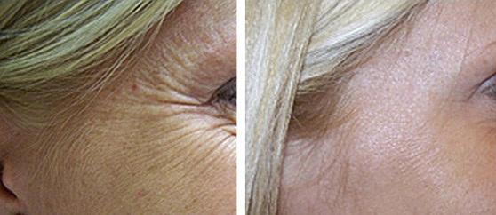 Фото до и после коррекции морщин под глазами (гусиные лапки)