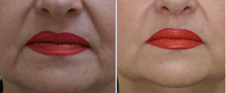 Морщины вокруг губ: фото до и после коррекции морщин марионеток