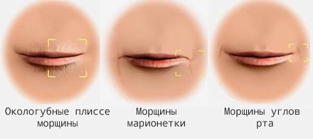 Морщины вокруг рта: кисетные, марионетки, носогубные