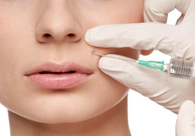 Инъеции филлеров от морщин вокруг рта