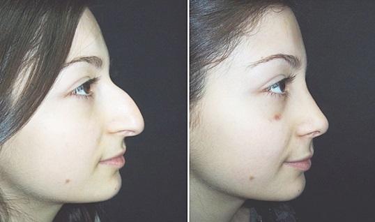 Как сделать что бы не толстый нос был 76