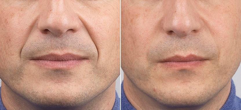 Носогубные морщины: фото до и после коррекции филлером