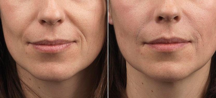 Носогубные морщины: фото до и после коррекции