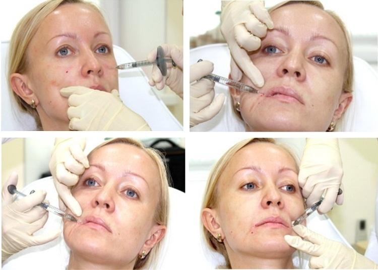 Носогубные морщины: инъекции филлера