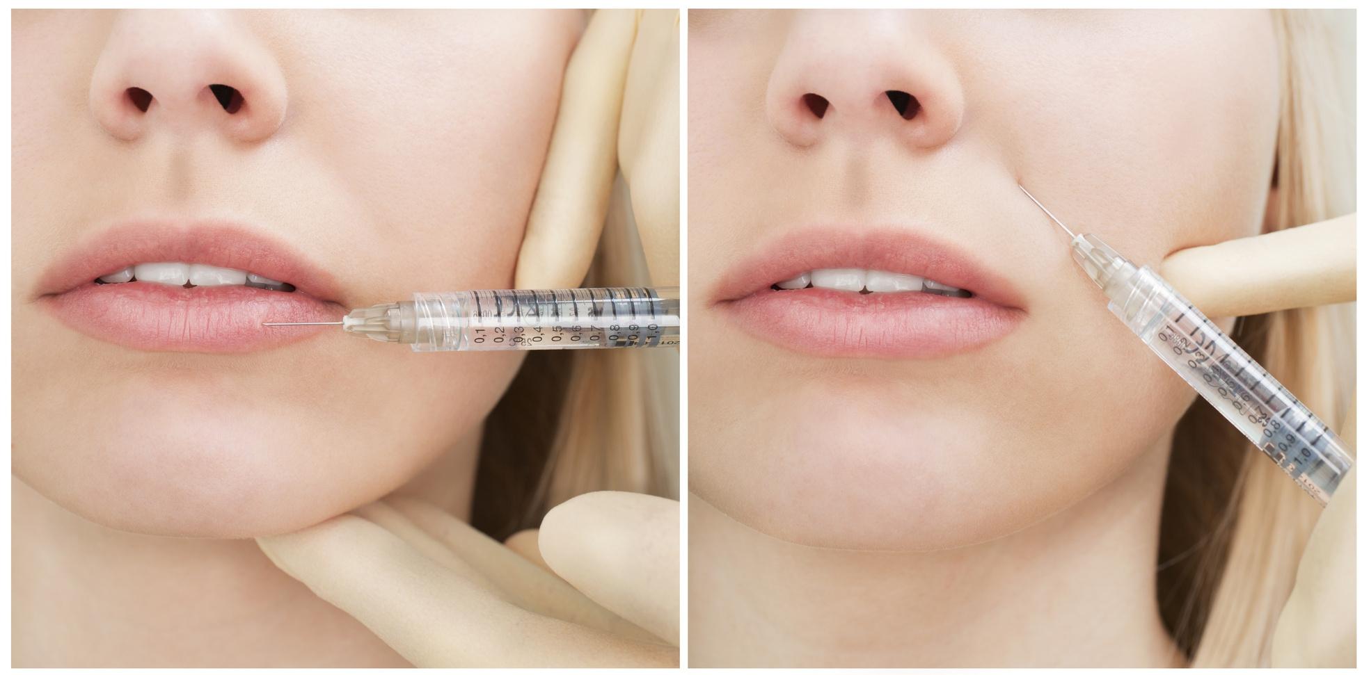Носогубные морщины: инъекционное введение препаратов, заполняющих морщины