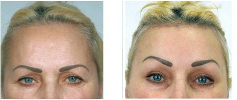 Фото до и после коррекции опущения бровей