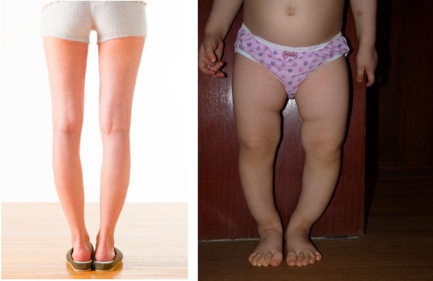 Варусная деформация голени у детей и взрослых