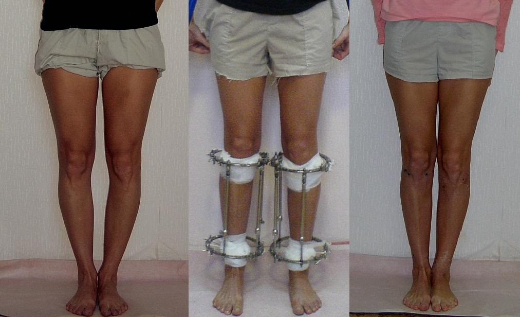 После хирургического лечения варусной деформации голени пациенту придется несколько месяцев носить на ногах аппарат Елизарова