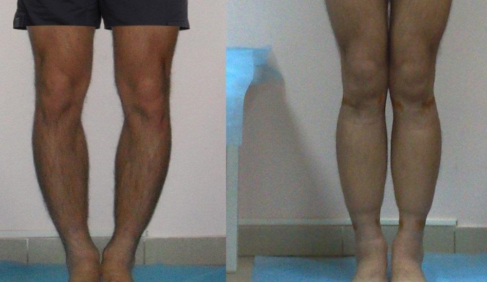 Варусная деформация голени – фото до и после операции