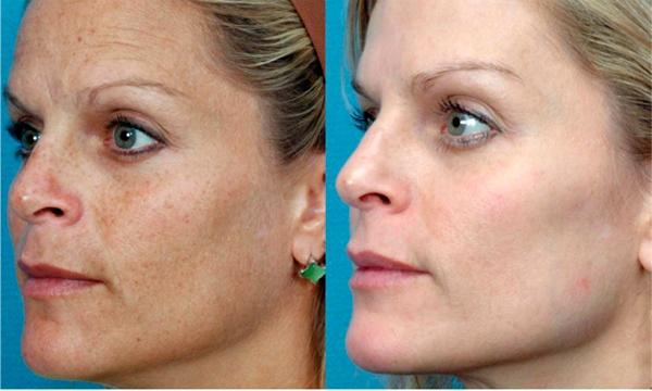 Фото пациентов до и после удаление веснушек лазером