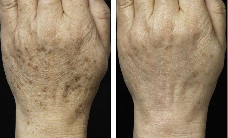 Фото до и после удаление веснушек на руках лазером