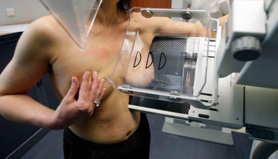 Что такое маммография молочных желез фото