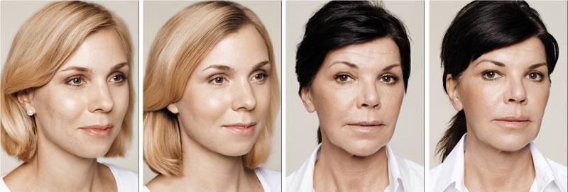 Мария малиновская фото до и после сладкое слово
